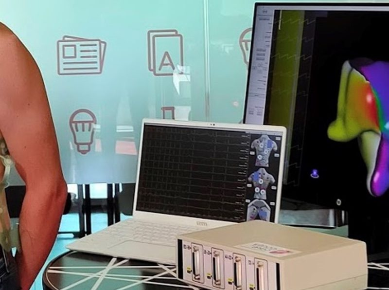 Corify Care raises €2.35M to translate its cardiac mapping technology to the market